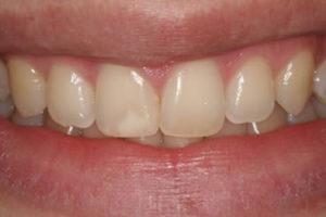 dentes envelhecidos
