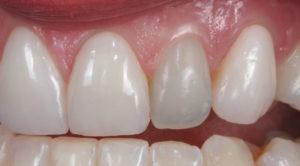 dentes escurecido por tratamento de canal