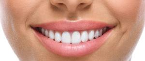 sorriso feminino